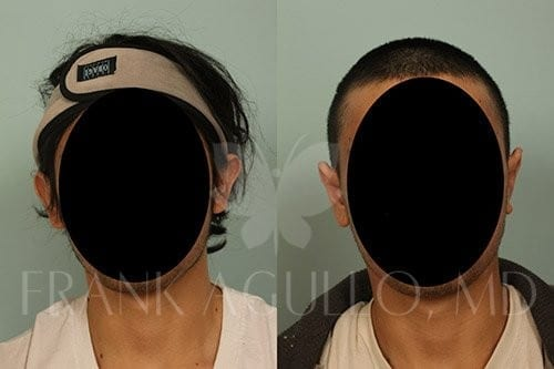 Otoplasty Before and After 1