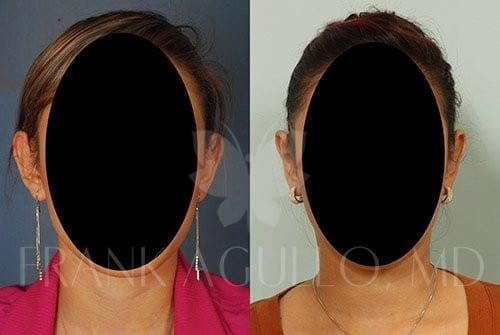 Otoplasty Before and After 2
