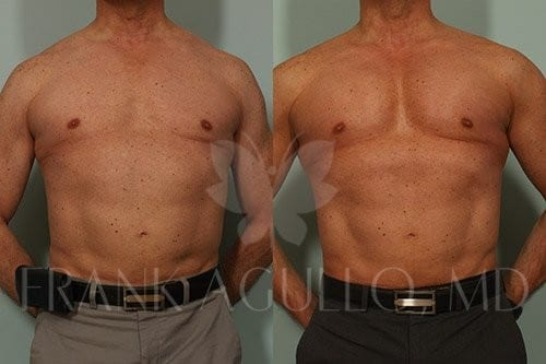Pectoral Implants Before and After 1