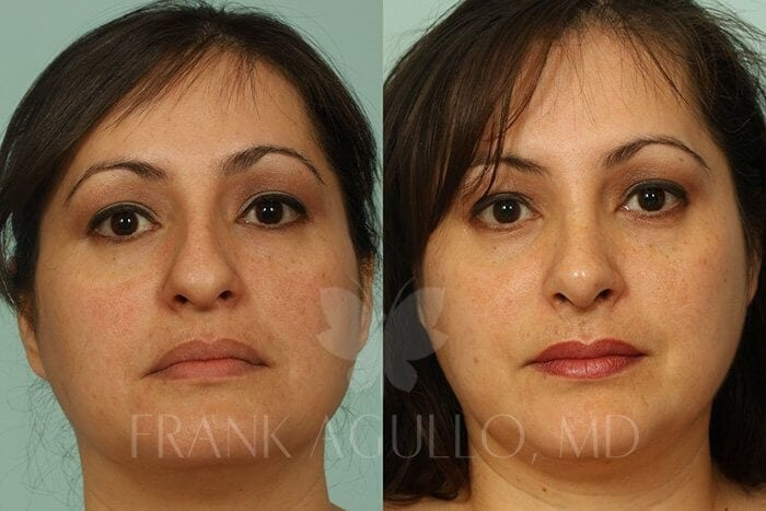 Rhinoplasty Before and After 12