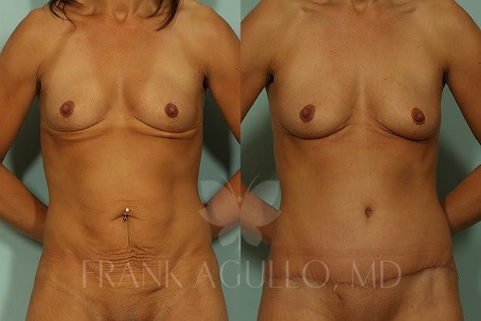 Tummy Tuck Before and After 11