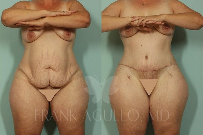 Tummy Tuck Before and After 19